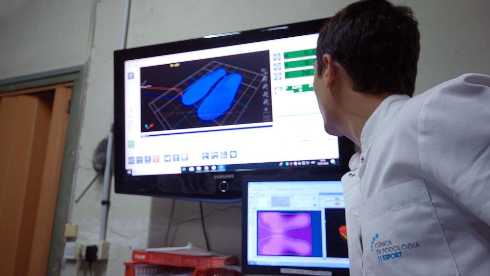 Plantillas 3D Personalizadas | Clínica Podologia i l'Esport